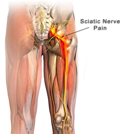 joint and nerve pain picture 9