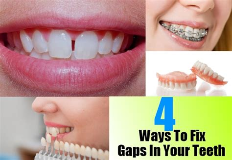 fix gap in teeth picture 1