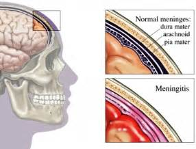 can meningitis xause blood clotts in brain? picture 21