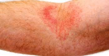 skin hives photos picture 19
