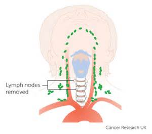 cleveland clinic; thyroid and abnormal lymph nodes and/or picture 1