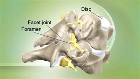 cervical and lumbar facet joint blocks picture 15