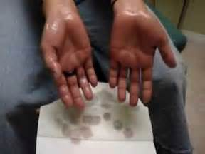 hyperhidrosis of the hands herbal cures picture 14