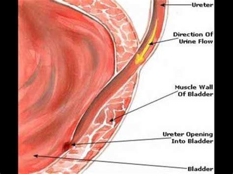 urine infection in urdu picture 3