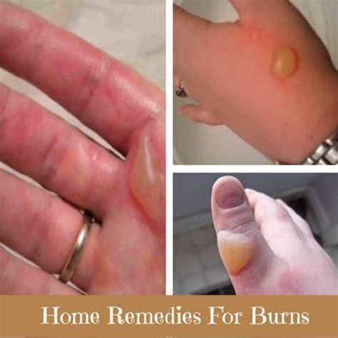 isagenix skin rash picture 5