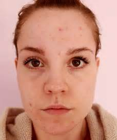 acne faced s picture 6
