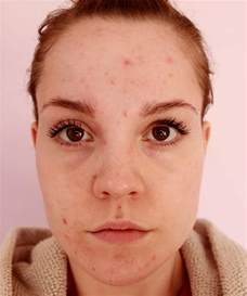 acne only on face picture 18