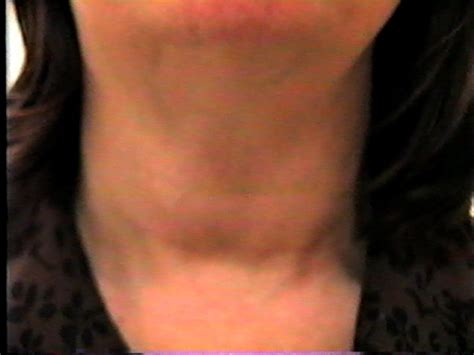 enlarged thyroid gland picture 3