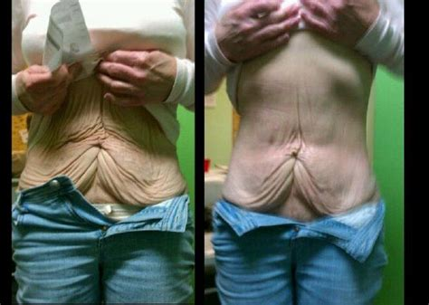 new weight loss pill that works like stomach surgery picture 7