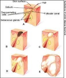 acidophilus for skin boils picture 13