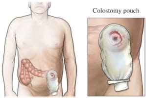 colon cleansing equipment picture 18