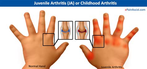 pain in joints picture 5