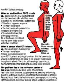 low blood pressure seizures picture 3