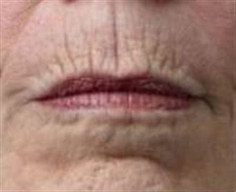 lines around lips picture 15
