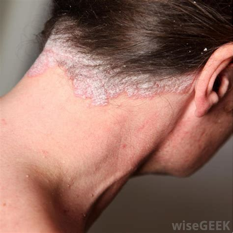 flaky dandruff like skin on body picture 9