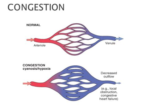 congestion blood circulation picture 1