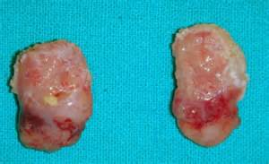 small cyst on liver picture 15