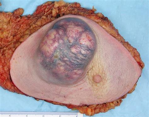 fatty liver tumor picture 9
