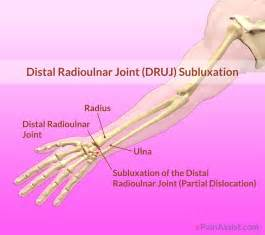 distal radial ulnar joint picture 1