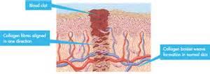 scar tissue on el skin picture 5