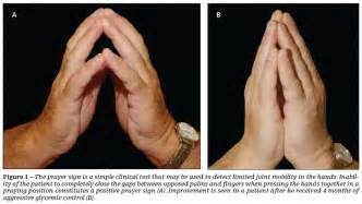 pain in joints of fingers picture 3