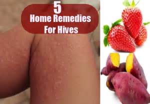 home cure for hives picture 7