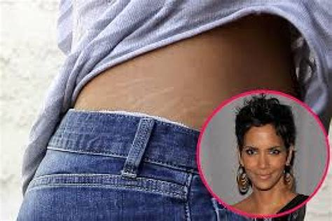 how do celebrities prevent stretch marks picture 4
