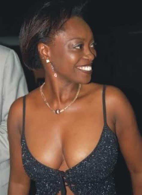 female breast tert picture 5