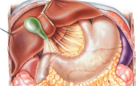 weight loss and gallbladder disease picture 10