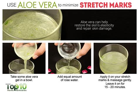alope vera stretch marks picture 1