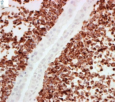 rhabdomyosarcoma of the bladder picture 17