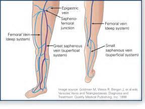 spiderlike veins under the skin picture 15
