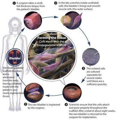 artificial bladder picture 11