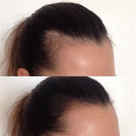 hair loss 4 months postpartum picture 1