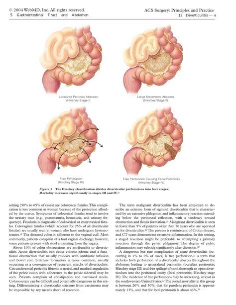 colon location picture 5