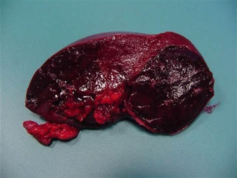 causes a liver hemangioma picture 10