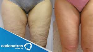 flabby es cellulite es pics picture 5