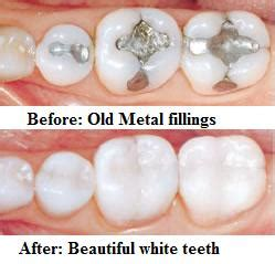 can natural teeth grow picture 10