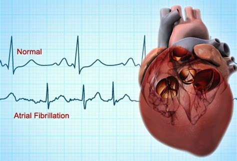 can herbal vitamins give you an abnormal ekg picture 15
