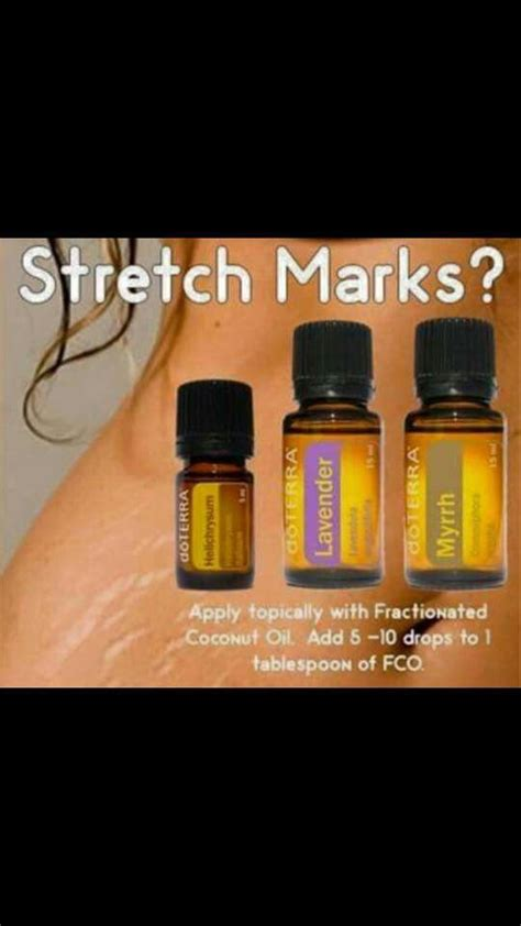 youngliving oils for stretch marks picture 14