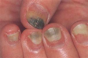 nail fungus from artificial nails picture 2