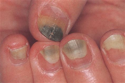 nail fungus from artificial nails picture 5