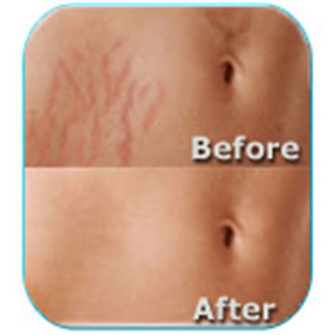 stretch mark removal surgery picture 13