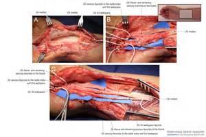 surgical colon nerve damage picture 7
