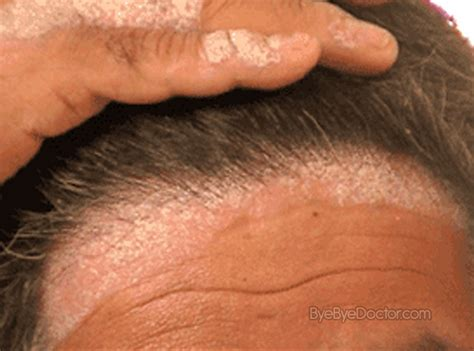 dandruff and yeast picture 9