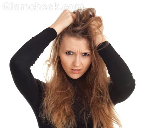 dry scalp that causes dust like particles to expell from hair picture 6
