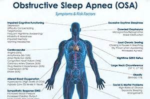 obstructive sleep apnea not snoring picture 13