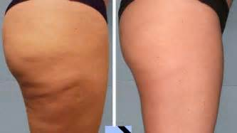 best anti cellulite cream picture 2