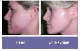 antiaging before after picture 3