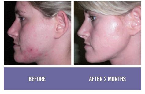 antiaging before after picture 2